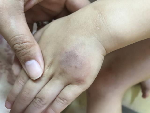 治す 内出血 【内出血.com】~顔や腕や足・治し方・病気・しやすい体質~